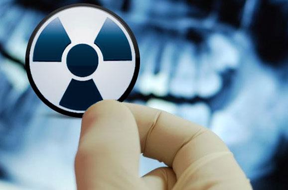 La radioprotection des patients exposés aux rayonnements ionisants
